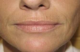 arrugas en los labios
